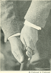 Figure 3 Showing the grip with both hands